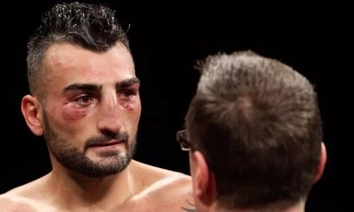 Американский боксер после тяжелого нокаута Головкина передумал завершать карьеру