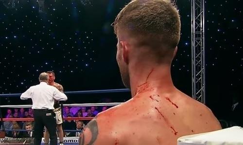 Непобежденный британец серией ударов залил кровью лицо соотечественника. Видео зверского нокаута в весе Ахмедова