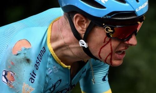 Гонщик «Астаны» завершил первый этап «Тур де Франс» с окровавленным лицом