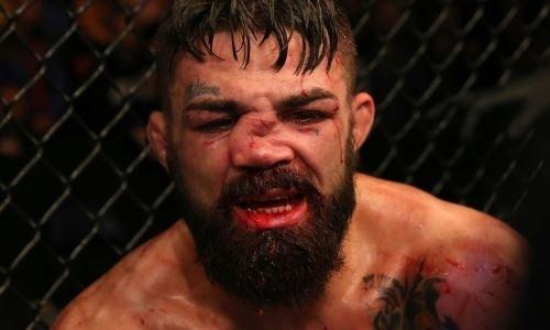 Боец UFC получил коленом по носу. Адское фото его травмы стало хитом в интернете