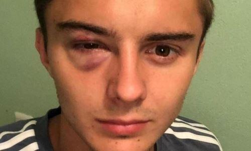«Хватит валяться». Судья РПЛ потроллил уроженца Казахстана, у которого после удара локтем заплыл глаз