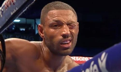 Жестоко избитый Головкиным экс-чемпион мира снова хочет драться с травмировавшим его боксером