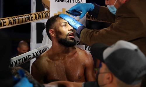 «Видно, что это артист, а не боксер». Соперник казахстанца вызвал возмущение в России