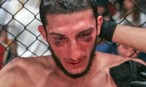 «Поставили пять спиц». Дазаев сделал первое заявление после поражения в титульном бою и показал фото дважды сломанной руки