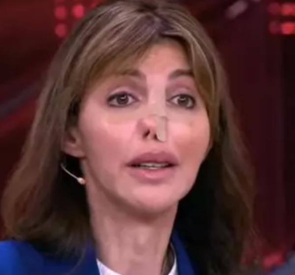 Бывшая жена экс-футболиста «Кайрата» впервые появилась на ТВ с изуродованным лицом. Фото