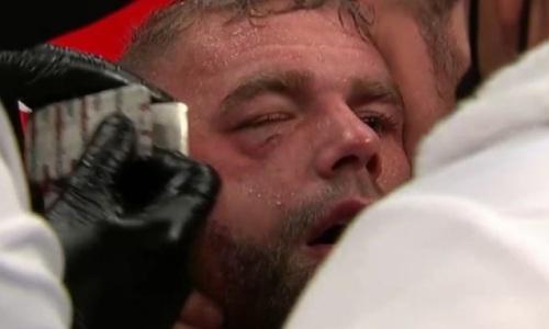 Сондерс в бою с «Канело» пострадал еще сильнее, чем думали. Подробности