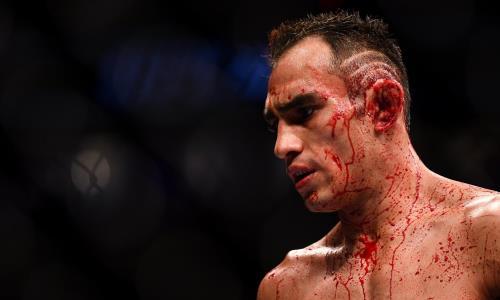 Уволят? Тони Фергюсон потерпел третье поражение подряд в UFC