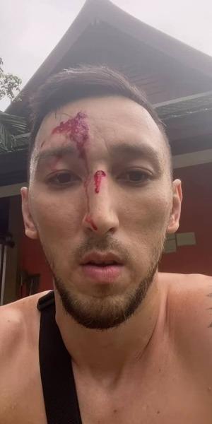 Менеджер бойцов UFC Жумагулова и Морозова попал в аварию и сразу показал последствия. Фото