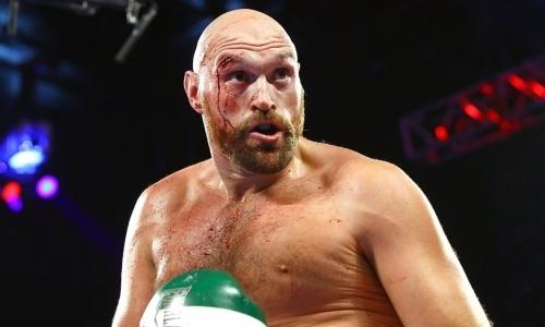 Назван боксер, который нокаутировал Тайсона Фьюри